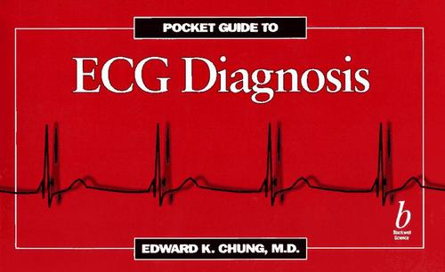 Pocket guide to ECG diagnosis