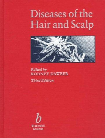 Diseases of the hair and scalp by